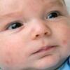 Потница кожи у маленького ребенка