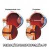 Повышение внутриглазного давления - симптомы, причины, лечение