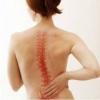 Причины болевых ощущений в позвоночнике