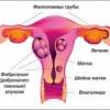Причины и лечение обильных менструаций