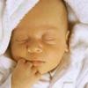 Причины и лечение желтушки у новорожденных