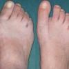 Причины и симптомы деформации стопы