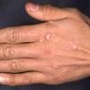 Причины и симптомы вируса папилломы человека