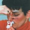 Причины носового кровотечения, лечение
