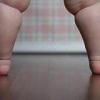 Причины ожирения у детей и подростков