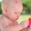 Причины развития гемангиомы у детей и методы ее лечения