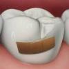 Причины развития кариеса зубов и профилактика