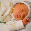 Причины развития желтухи новорожденных