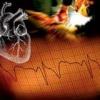 Признаки и лечение гипертонического криза