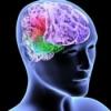 Про ишемический инсульт головного мозга