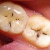 Проблемы с зубами или заболевание кариес