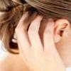 Профилактическое лечение болезни псориаз