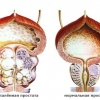 Простатиту часто сопутствует аденома