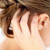 Псориаз на голове: симптомы и лечение