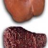 Развитие заболевания цирроз печени