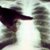 Рентгенологическая диагностика рака легкого