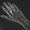 Рентгенологическое исследование вен и артерий