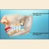 Режутся зубы мудрости – симптомы, что делать?