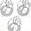 Самые распространенные пороки сердца у детей