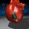 Сердечно-сосудистое заболевание инфаркт миокарда