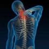 Шейный хондроз: лечение, симптомы