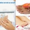 Шелушение кожи и зуд на ногах
