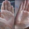 Шелушение кожи на ладонях