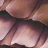 Шелушение кожи в паху, как лечить