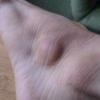 Шишка на ноге под кожей в изгибе между пахом и ногой