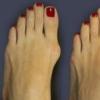 Шишки на ногах возле большого пальца