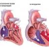 Симптомы и причины ушиба сердца