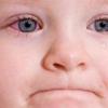 Симптомы конъюнктивита в глазах у ребенка