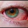 Симптомы покраснения глазного яблока