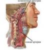 Синдром позвоночной артерии: симптомы, лечение
