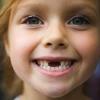Сколько молочных зубов у детей?