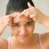 Способы лечения акне в зрелом возрасте
