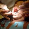 Стоматит: лечение в домашних условиях