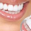 Стоматит у взрослых: чем и как лечить стоматит во рту?