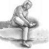 Сухой мозоль на пальце на ноге: как избавиться?