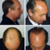 Трансплантация собственных волос у женщин и мужчин
