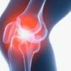 Травма коленного сустава у человека