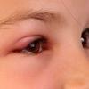 Укусила мошка в глаз - чем снять отек? Как убрать отек глаз после укуса комара и пчелы?