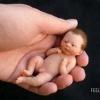 Ужасные последствия аборта