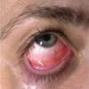 Вирусный конъюнктивит - симптомы, лечение