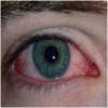 Воспаление глаза - симптомы, причины, виды