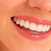 Восстановление поврежденных кариесом зубов