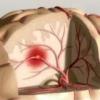 Врождённые аномалии сосудов головного мозга