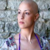 Выпадение волос при курсах химиотерапии