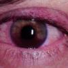 Заболевание глаз тромбоз вен сетчатки