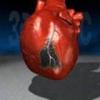 Заболевание сердца инфаркт миокарда